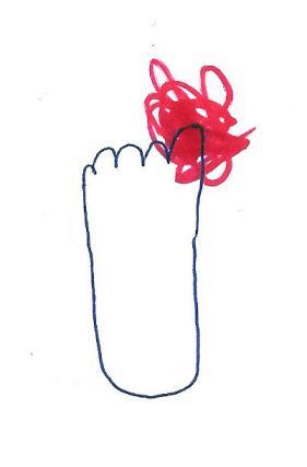 mom's toe 001